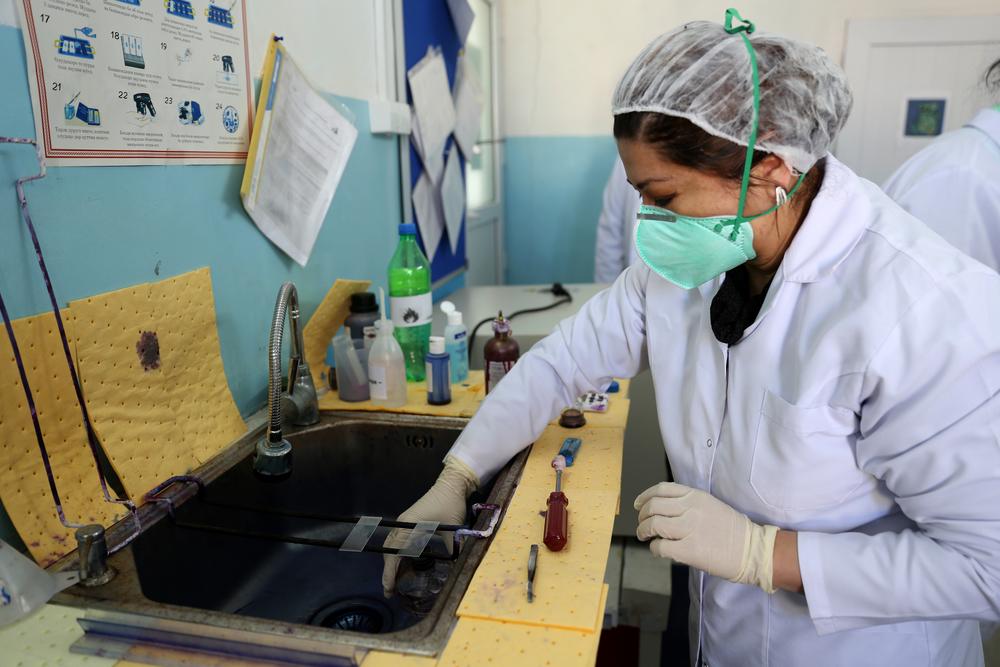 Técnico de laboratório de MSF analisa amostra de escarro no hospital nacional pediátrico de tuberculose em Dushanbe, no Tadjiquistão. (Foto: Joosarang Lee/MSF)
