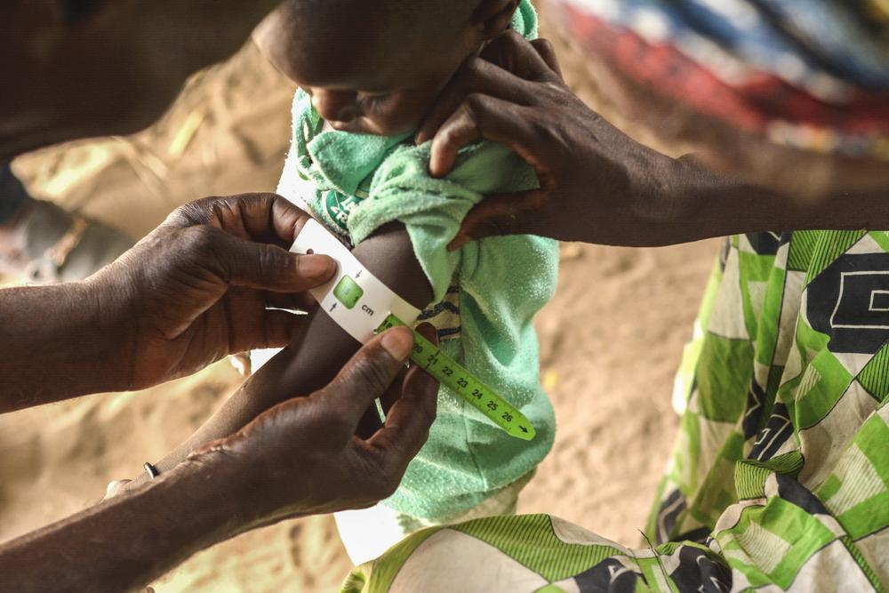 MSF atua para simplificar diagnóstico e tratamento da desnutrição no Níger