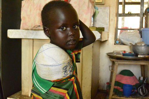 A pequena Nyajuba, de cinco anos, depois da cirurgia (Foto: MSF)