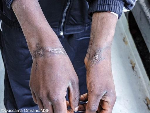 Mediador cultural de MSF a bordo do navio Aquarius conta a história de Jonathan, um nigeriano de 17 anos feito de refém na Líbia