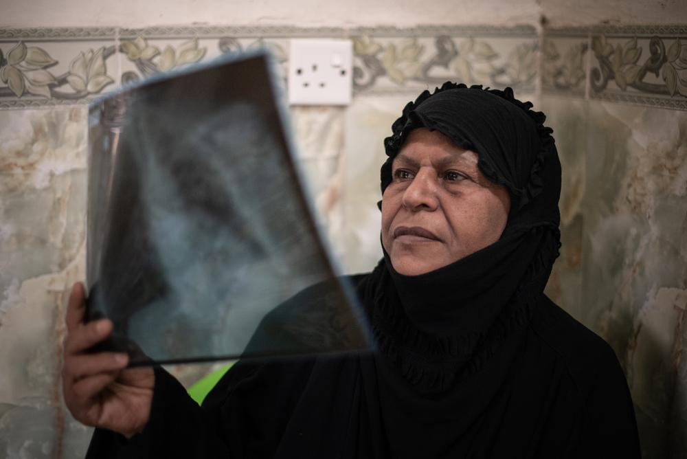 Hameeda, 65, primeira paciente do Iraque a ser curada com o novo tratamento oral para tuberculose multirresistente, fotografada em sua casa. Foto por: Chloe Sharrock / MSF