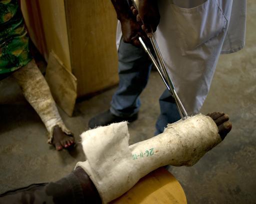 Mulher que sofreu fratura na perna recebe cuidados no hospital de Tari, na PNG (Foto: Jodi Bieber)