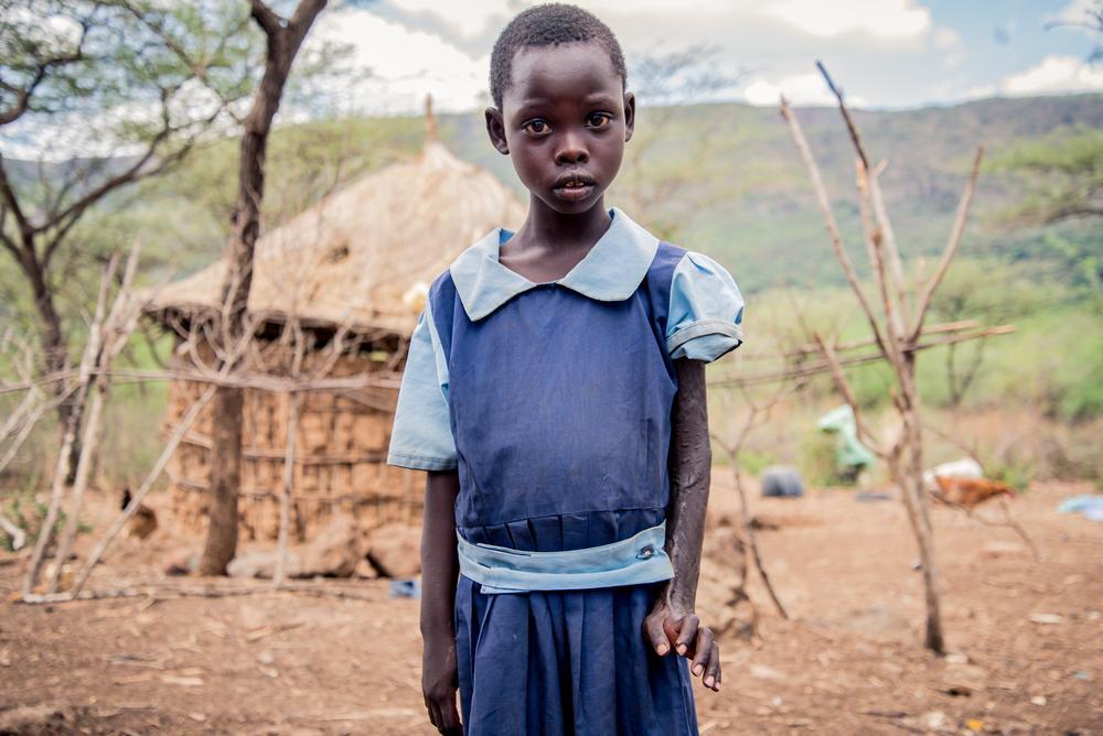 Foto: Paul Odongo/MSF