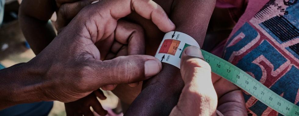 A desnutrição ameaça a população de algumas regiões de Madagascar