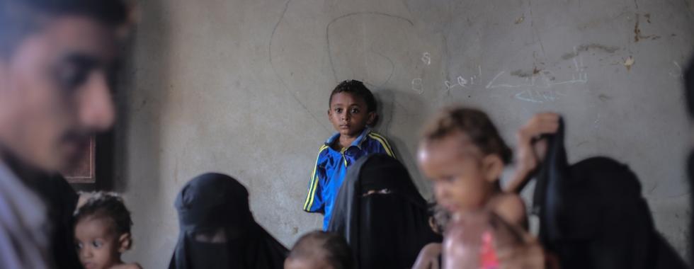 Iêmen: desnutrição infantil no hospital de Al-Thawra