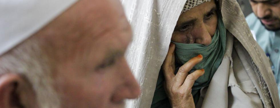 A única opção para o tratamento da leishmaniose cutânea em Khyber Pakhtunkhwa