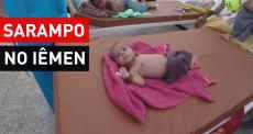 Iêmen | Surto de sarampo