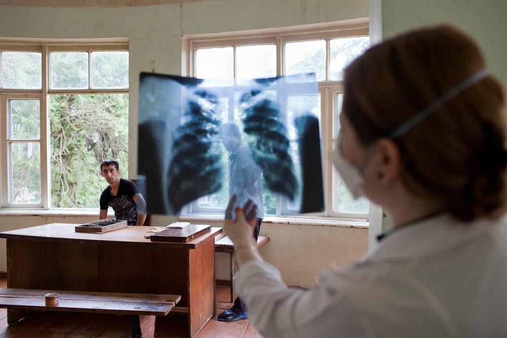 MSF divulga dados preliminares sobre uso de novos medicamentos contra a tuberculose: