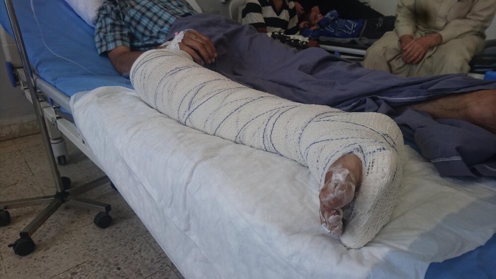 Hospital em Hassakeh recebe mais vítimas de ataques aéreos no norte da Síria